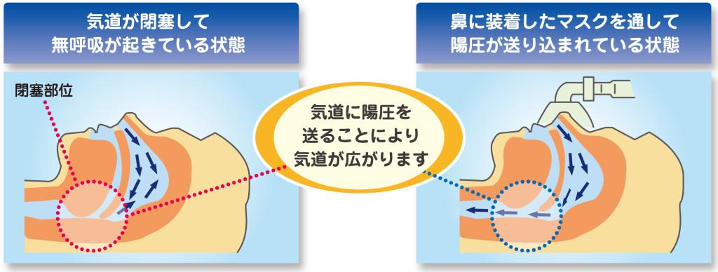 気道が閉塞して無呼吸が起きている状態。鼻に装着したマスクを通して陽圧が送り込まれている状態